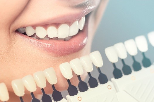 Dental Veneers Options Scripps Ranch