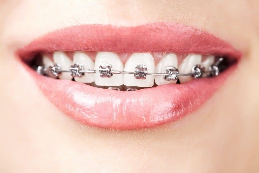 Orthodontics in Scripps Ranch