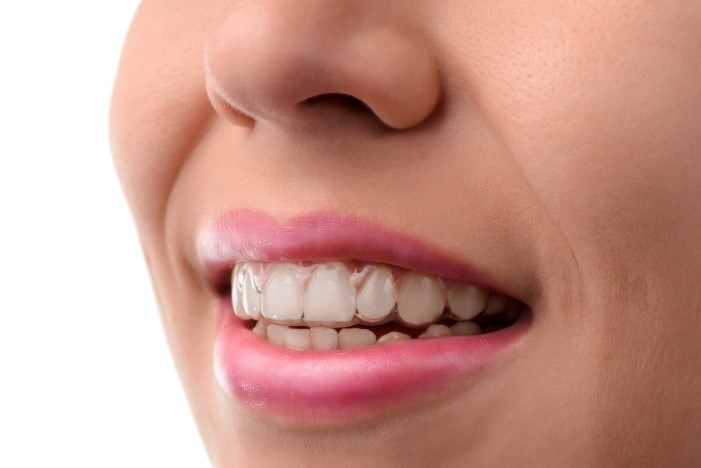 Invisalign & ClearCorrect in San Diego