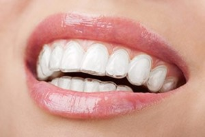 Invisalign & ClearCorrect in Scripps Ranch