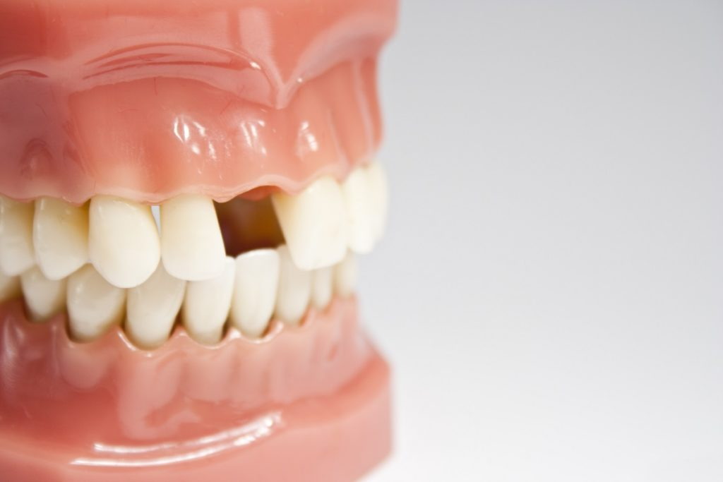 Dental Bridges vs Implants: Pros & Cons
