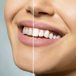 Teeth Whitening in Scripps Ranch
