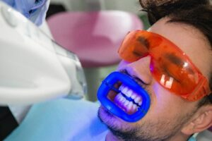 Teeth Whitening in Rancho Peñasquitos